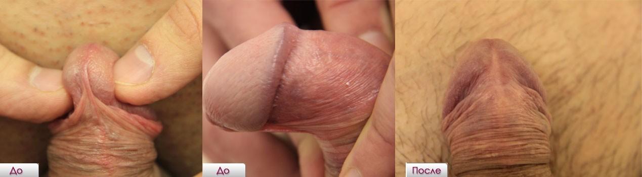 Эро фото мужчины после удаления полового члена, киски голые красивые видео