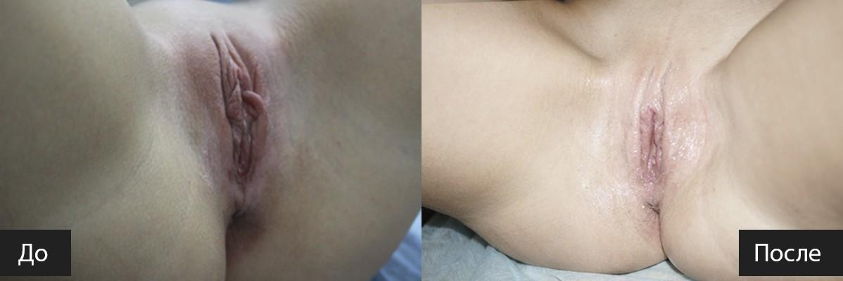 интимный ботокс половых губ фото харьков